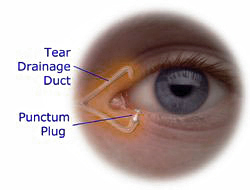 dry eye plug treatment